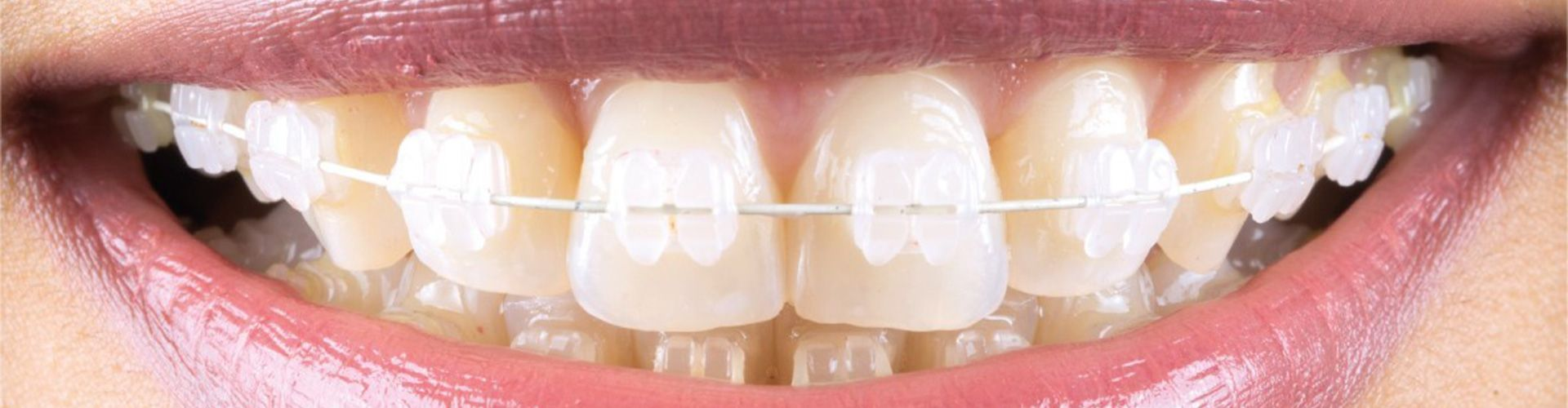 dental braces and orthodontics - Smile Dental Group Ilminster